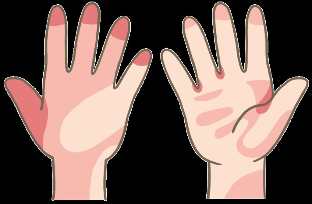 手の洗い残しやすい場所