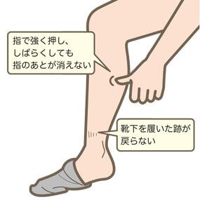 看護師の浮腫んだ足の説明